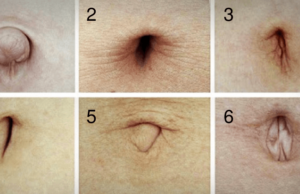 Determine Your Personality By The Shape Of Your Belly Button